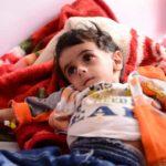 Amal*, una bambina di 2 anni, soffre di una grave forma di malnutrizione che prende il nome di Kwashiorkor, causata da carenze di proteine e nutrienti che blocca il flusso di sangue nei tessuti. CREDITI FOTO: Muhammad Awadh/ Save the Children