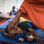 UNICEF/Somalia: i bambini gravemente malnutriti aumentano del 50%