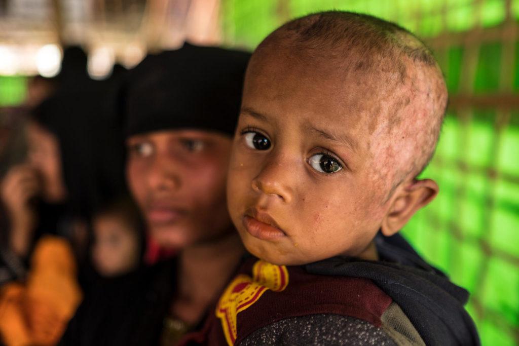 """UNICEF: 720mila bambini rohingya in pericolo. Nuovo rapporto """"Vite nel Limbo"""""""