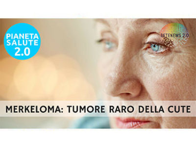 Merkeloma, tumore raro della cute. PIANETA SALUTE 2.0 - 115a puntata