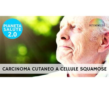 Carcinoma cutaneo a cellule squamose. PIANETA SALUTE 2.0 169a puntata